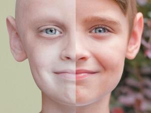 Рак — не приговор: как предотвратить онкозаболевание?